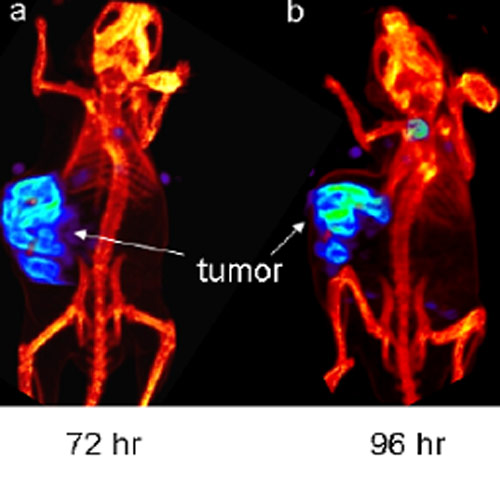 Time course of uptake of [125I]FIAU by another EBV(+) Burkitt's xenograft (Akata) by SPECT-CT in vivo (Fu et al, Clinical Cancer Research 2006).